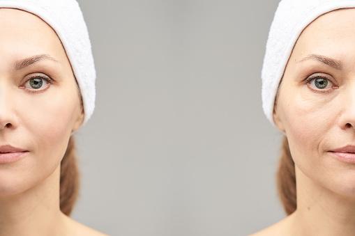 Beauty Salon Injury Claims